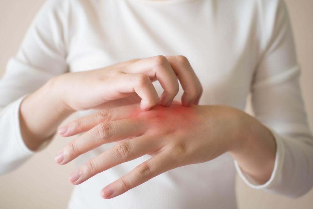 Viêm mô tế bào: Bệnh lý nhiễm trùng da thường gặp