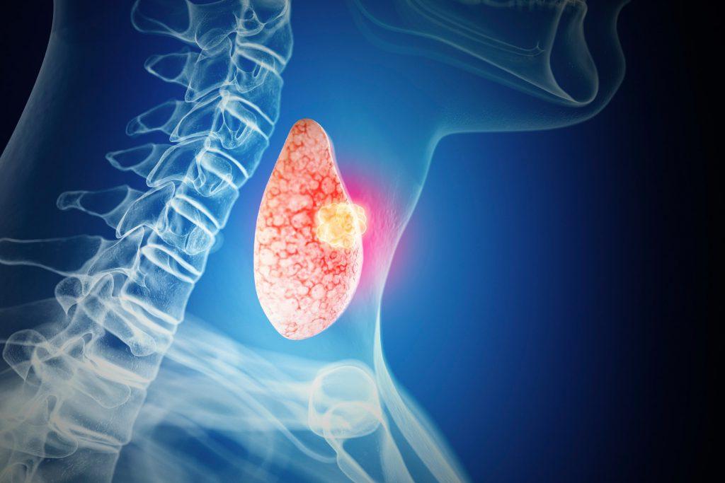 Benign neoplasm of thyroid gland