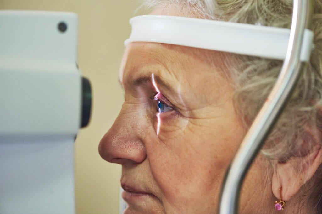 Glaucoma is an eye condition that occurs when the optic nerve is damaged, which leads to vision loss and blindness. This is usually caused by high pressure in the eye. The optic nerve is a bundle of nerve fibers that connects the retina to the brain