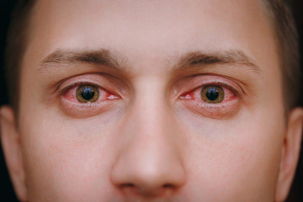 mộng thịt trong mắt