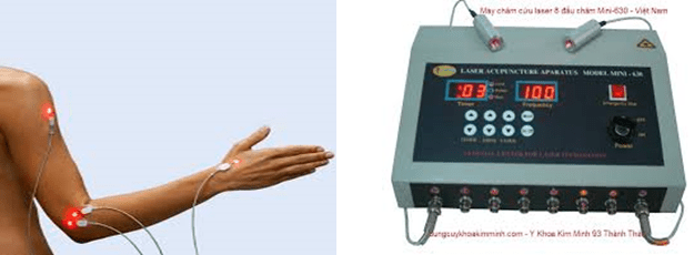 ứng dụng của laser trong y học