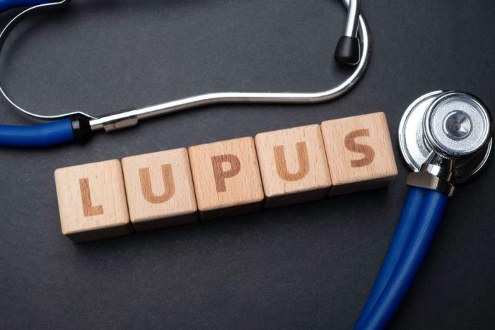 lupus ban đỏ